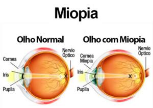 875d88785 TRATAMENTO. O objetivo do tratamento da miopia ...